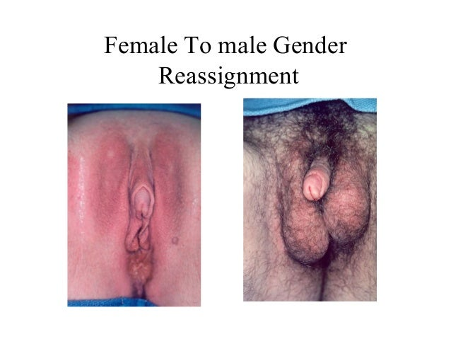 Men sex change before after pussy